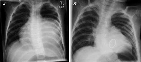 Marfan's syndrome and the heart | Archives of Disease in