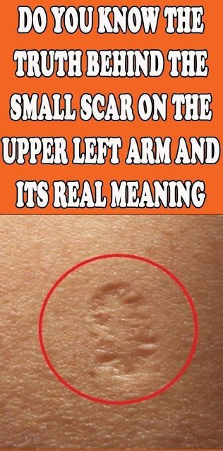 Do You Know The Truth Behind The Small Scar On The Upper
