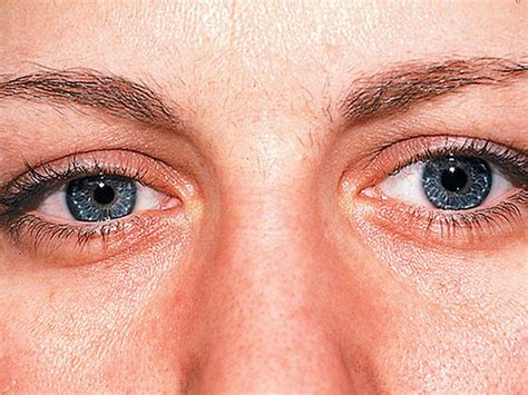 Gray ring around the cornea - 12 scary things your eyes